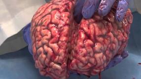 Cirurgião promete transplantes de cérebro até 2020