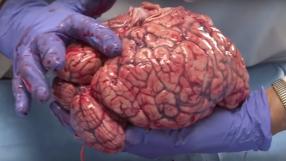 Empresa quer congelar seu cérebro