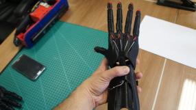 Engenheiro brasileiro desenvolve Prótese 3D de R$ 1 mil