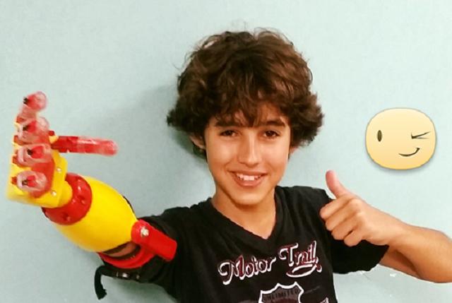 O garoto Pepi e sua prótese 3D
